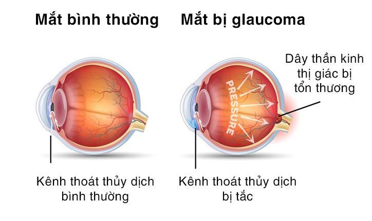 Glaucoma là gì?